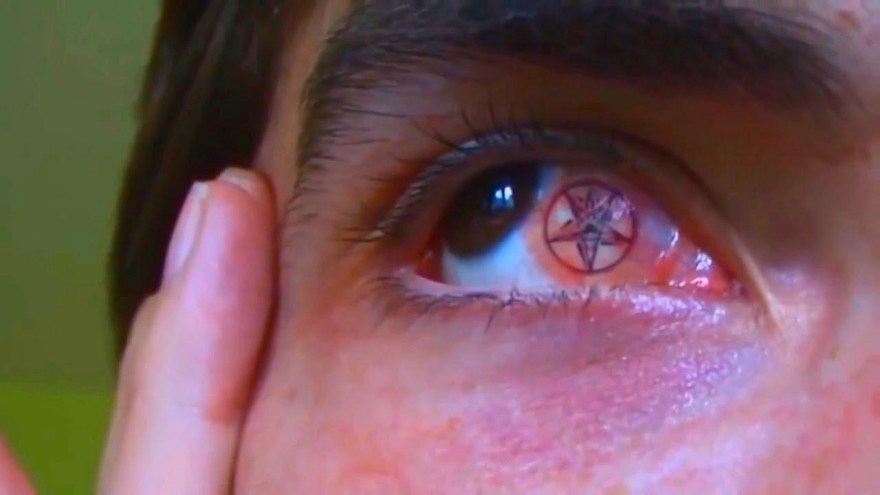 Татуировка на глазном яблоке